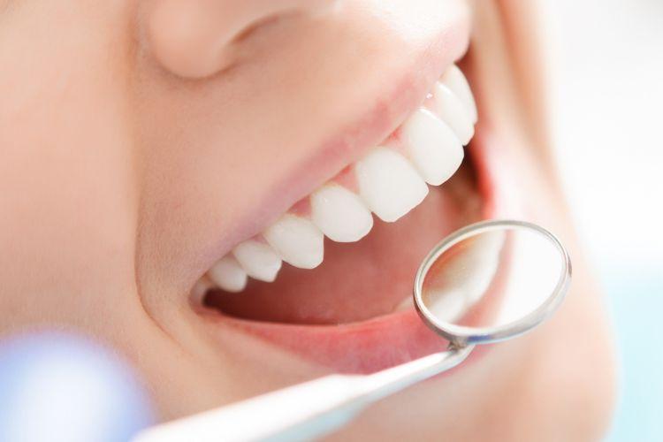 manfaat cengkeh untuk gigi